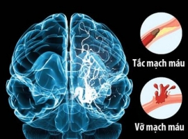 10 triệu chứng đột quỵ điển hình cần biết